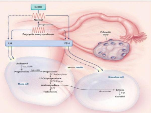 sindrome-de-ovario-poliquistico-vultos