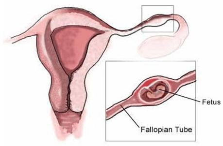 Embarazo y sangrado: qué pasa si el test de embarazo me da positivo pero sangro