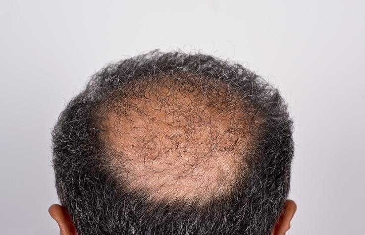 Ejemplo de antes y despues de injerto de pelo