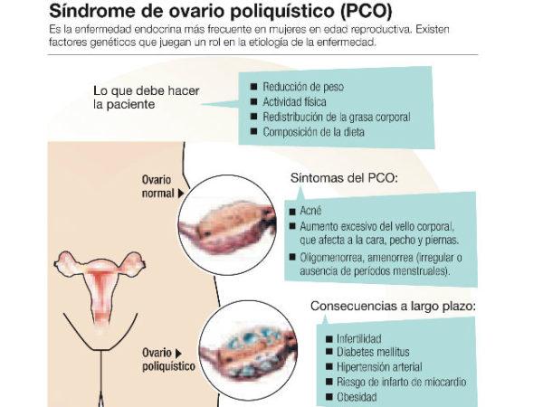 sindrome-ovario-poliquistico-proceso