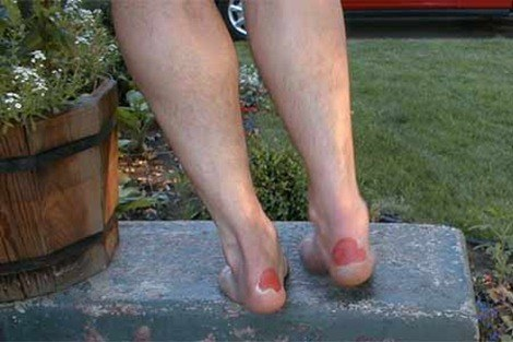 how to get rid of granulation tissue on toe