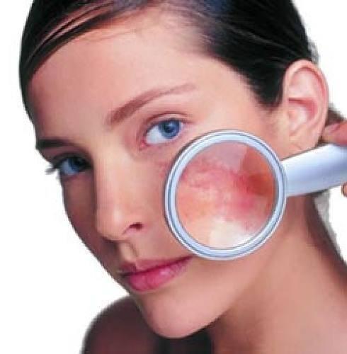 Cómo eliminar las manchas en la piel