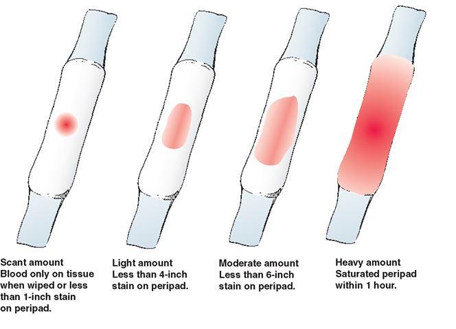Sangrado y manchado de la vagina durante el embarazo