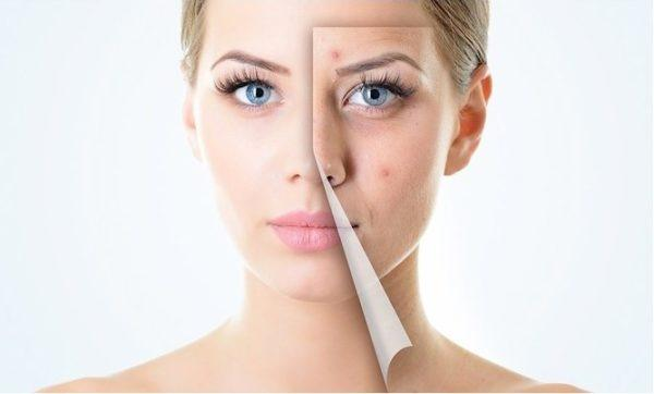 Las causas del surgimiento de las manchas de pigmento y su tratamiento