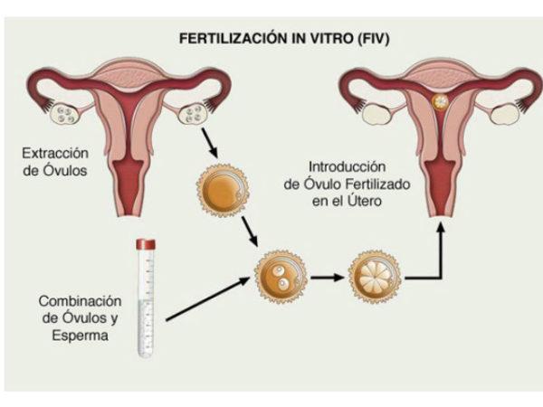 fertilidad-in-vitro-fid-proceso