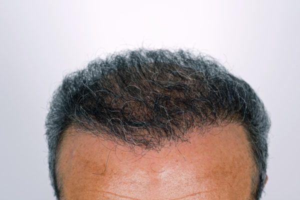 Antes y despues del injeto de pelo