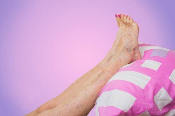 el-tratamiento-mas-efectivo-para-ocultar-las-varices-piernas-en-alto-istock