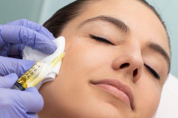 Cortisona para el acné