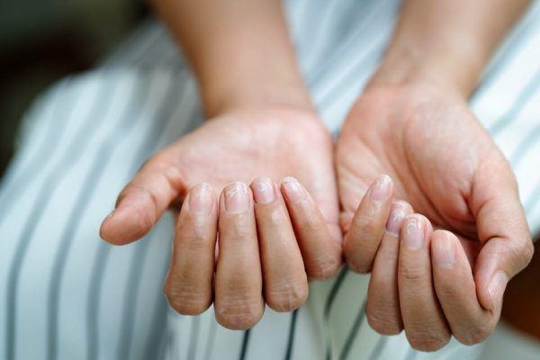 Las causas y las soluciones a las Estrías en las uñas